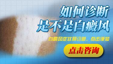 怎么才能确诊皮肤上白斑是不是白癜风