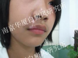 14岁南京男孩的康复故事2.jpg