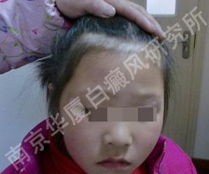 9岁女孩的抗白经历1.jpg